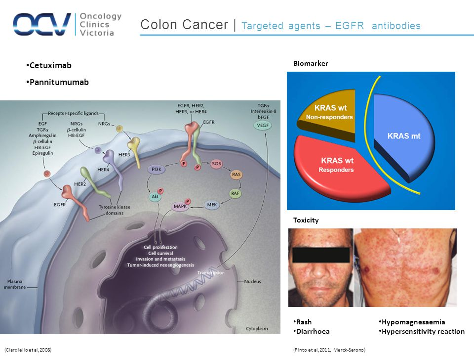 Colon Cancer | Targeted agents – EGFR antibodies