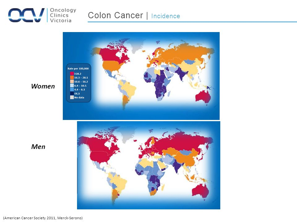 Colon Cancer | Incidence