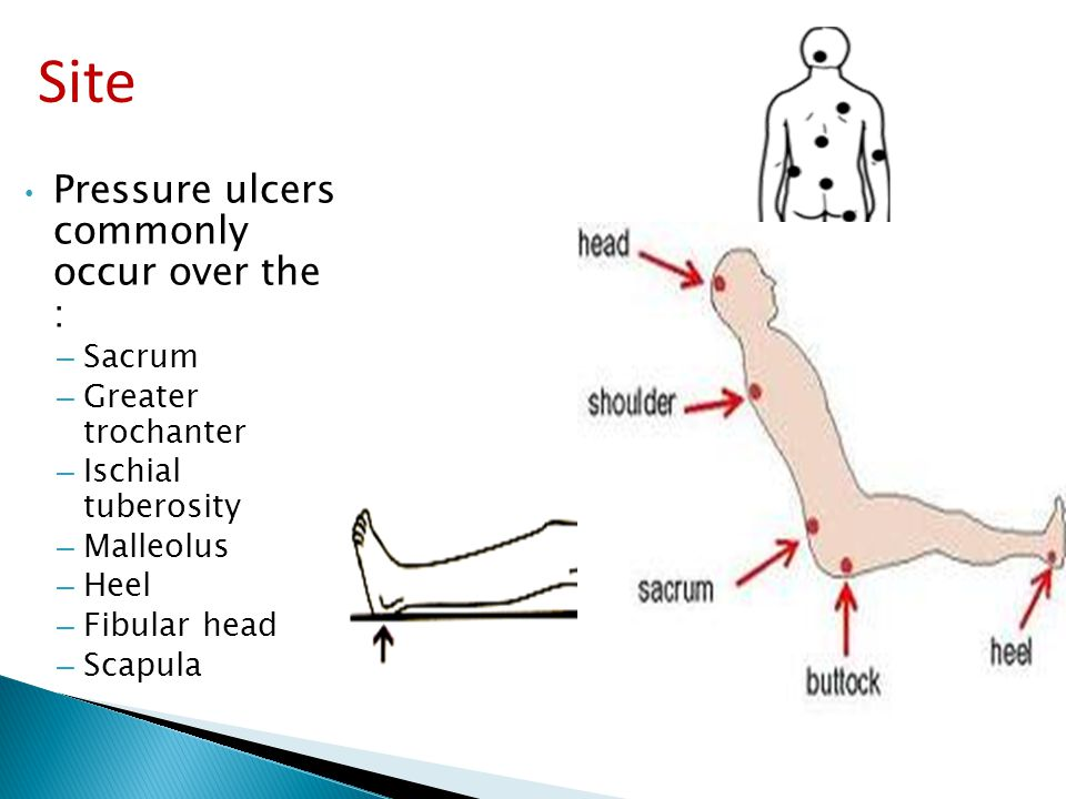 pressure ulcer on sacrum Sacral decubitus ulcers are a certain type of wound located on the lower back at the bottom of the spine learn about how to stage and treat this type of ulcer.