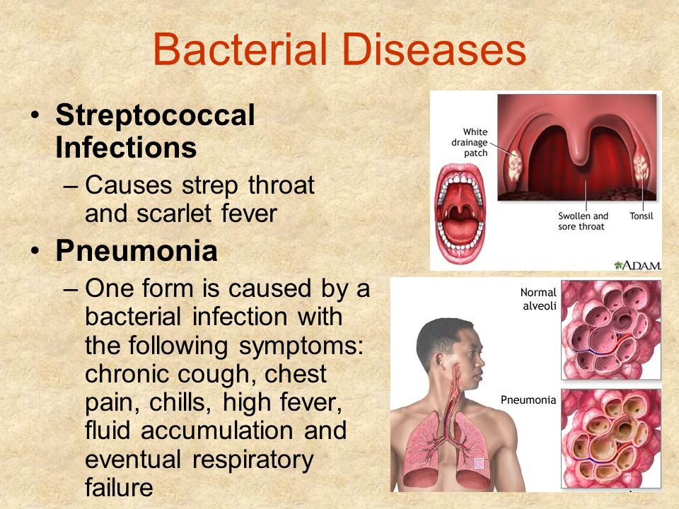 Bacterial Diseases Streptococcal Infections Pneumonia