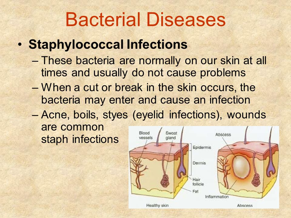 Bacterial Diseases Staphylococcal Infections