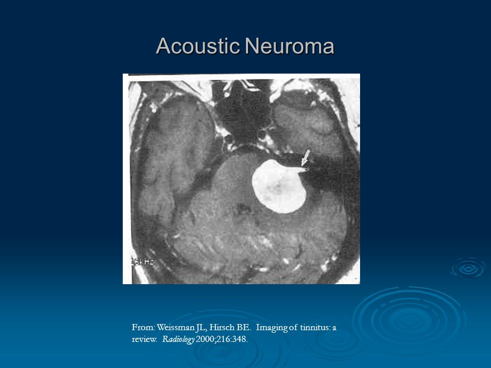 What is Acoustic Neuroma?