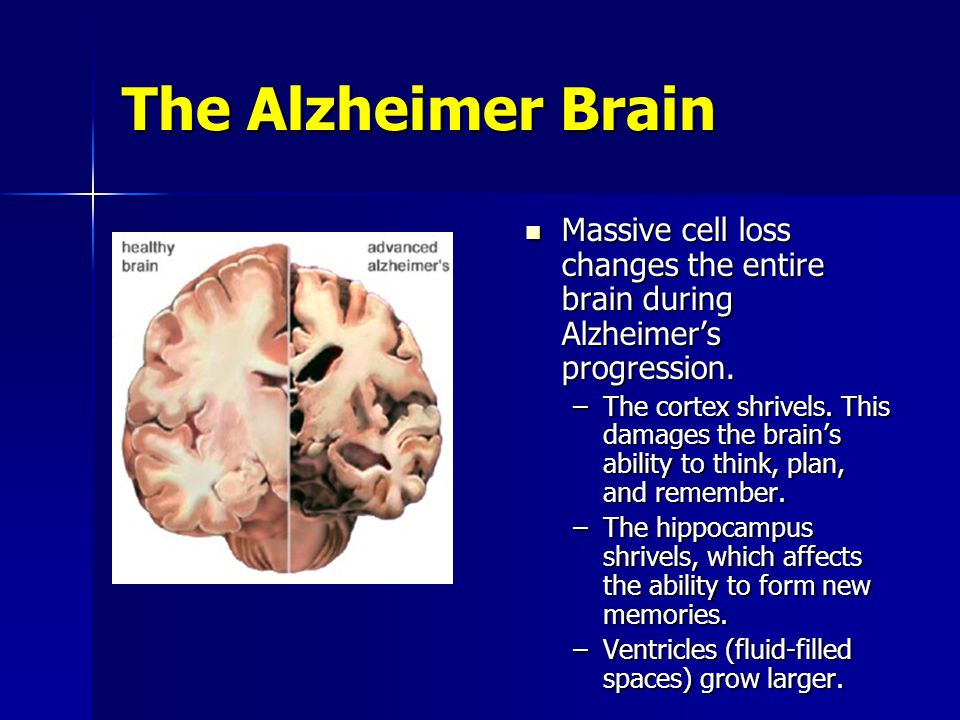 alzheimer s disease and its effects Alzheimer's disease and its effects essaysmemory is an essential part of everyone's daily life therefore, memory loss can be a stressful.