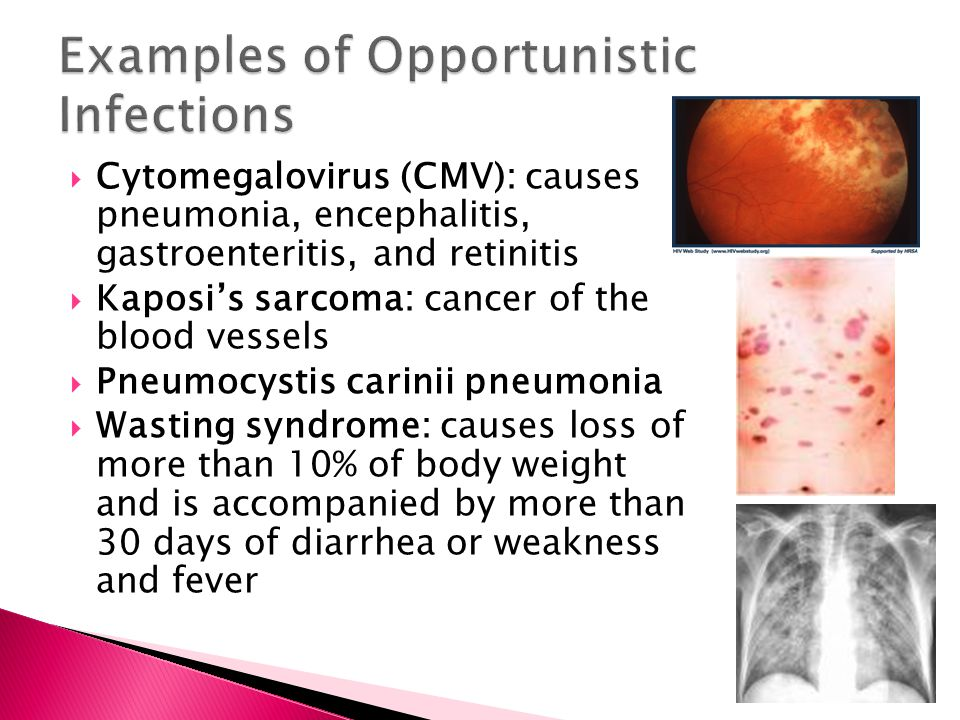 Examples of Opportunistic Infections