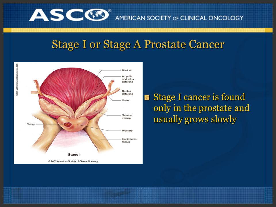 Stage I or Stage A Prostate Cancer