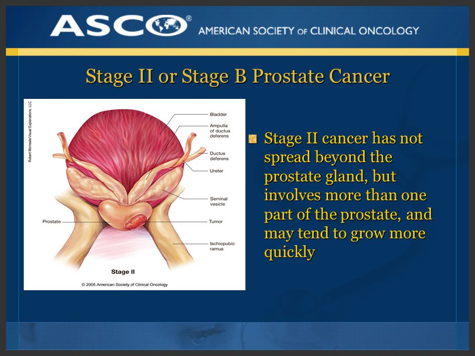 Stage II or Stage B Prostate Cancer