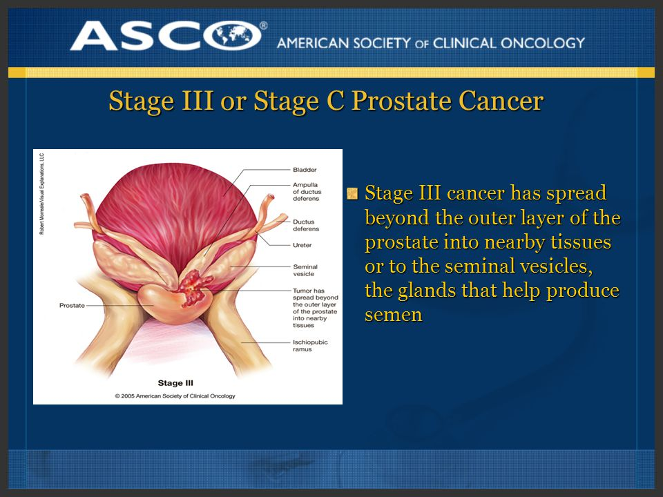 Stage III or Stage C Prostate Cancer