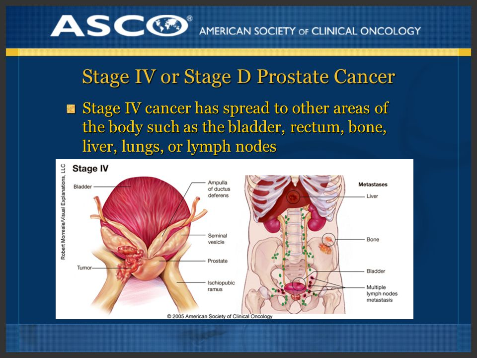Stage IV or Stage D Prostate Cancer