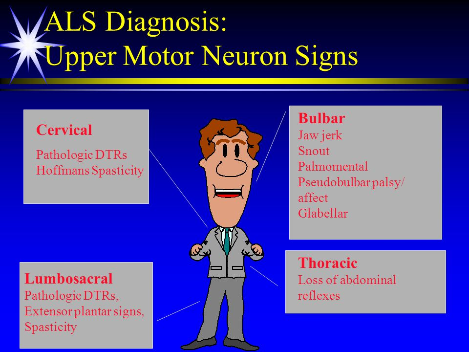 Motor neuron disease progressive bulbar palsy for Motor neurone disease signs and symptoms