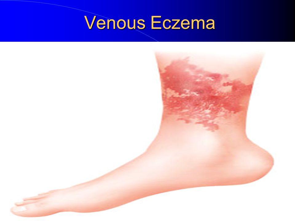 Painful swollen limb. Painful swollen limb Case A 28-year ...