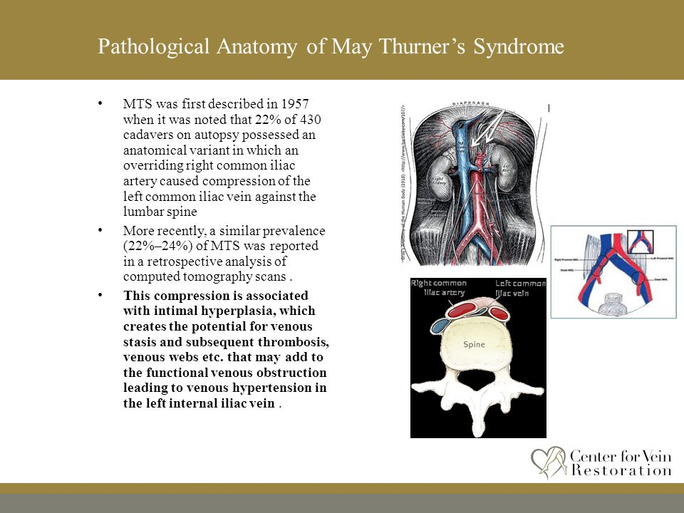 What You Need to Know About May-Thurner Syndrome