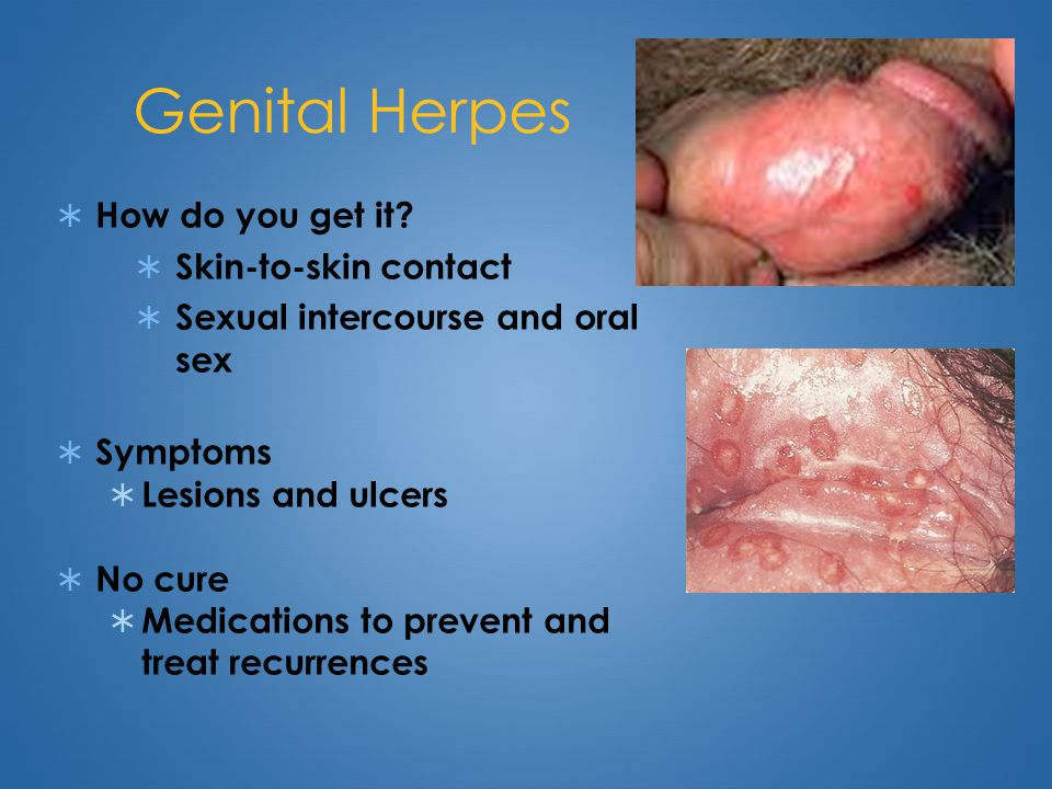 genital-herpes-from-oral-sex-skinny-redhead-wife
