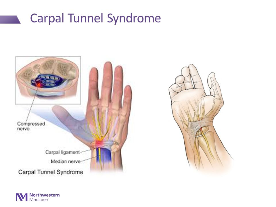 Carpal Tunnel Syndrome Treatment Home Remedies