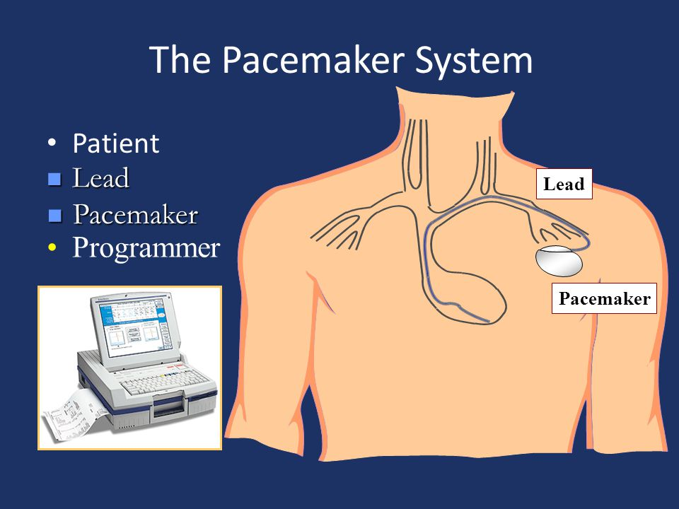 pacemaker surgery risk lead penetrate