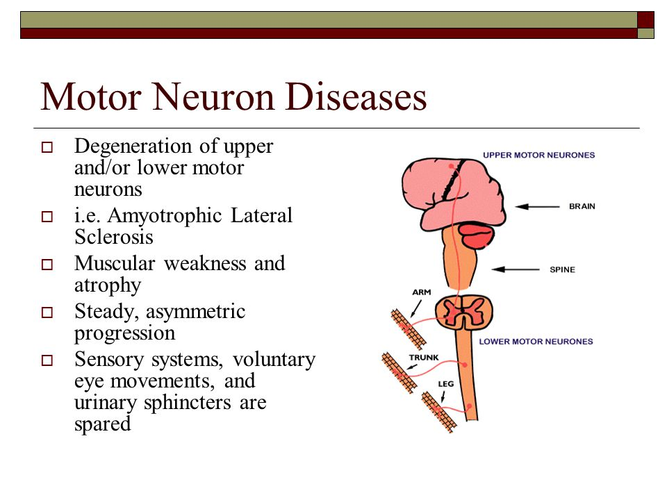 Kasia petelenz greg gordon and others november 15 ppt for Motor neurone disease causes