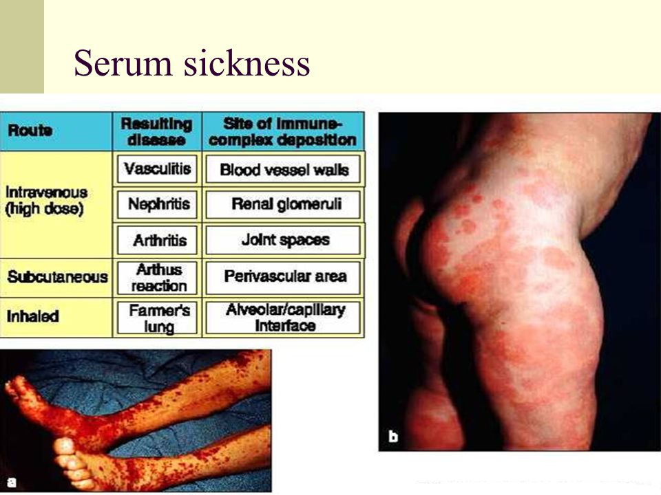 serum sickness What is serum sickness symptoms, causes, diagnosis, pictures, treatment, photos serum sickness is also known as type iii hypersensitivity reaction and is described as.
