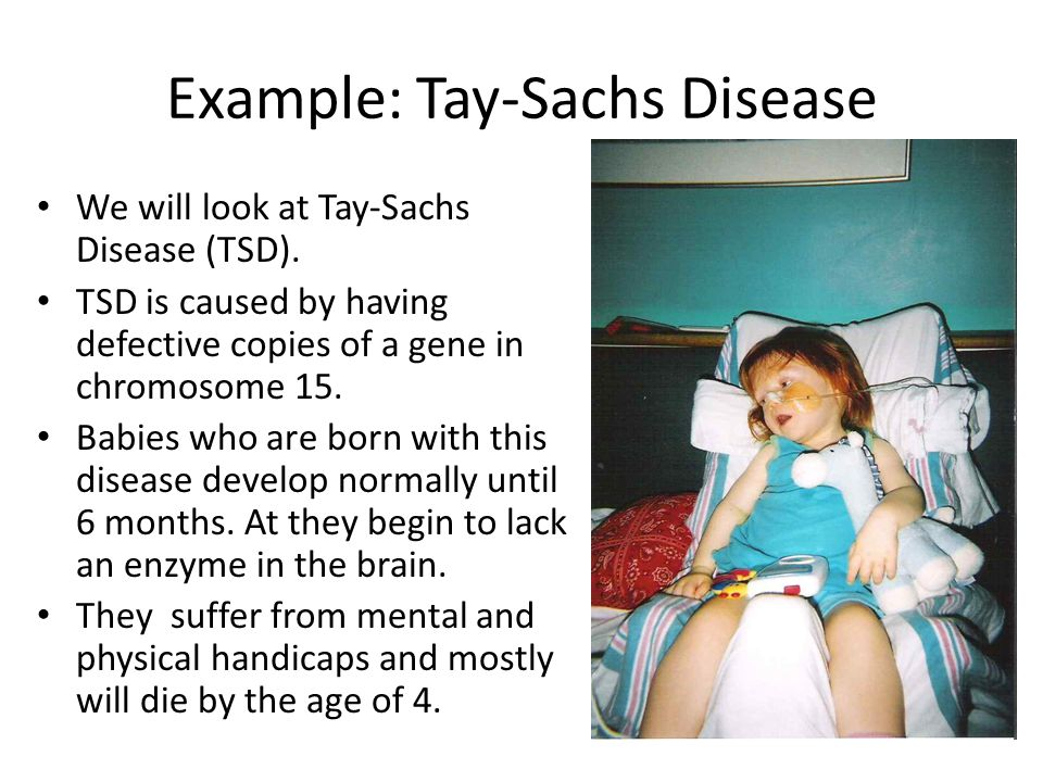 the origin and causes of tay sachs disease Tay-sachs is an autosomal recessive character, which means it is a hereditary condition passed down to a child through defective genes in both parents, giving the child a 25% chance of developing tay-sachs disease.