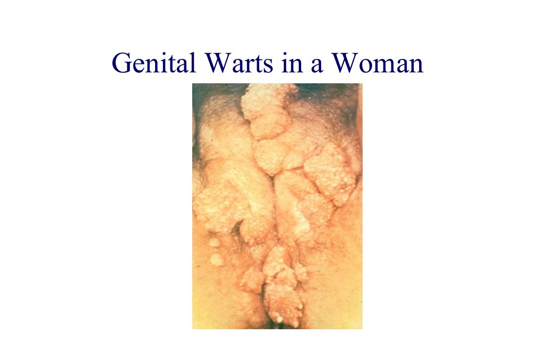 How is anal warts transmitted