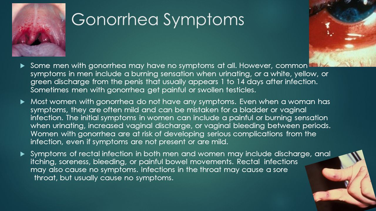 Gonorrhea Discharge Women - Bing images
