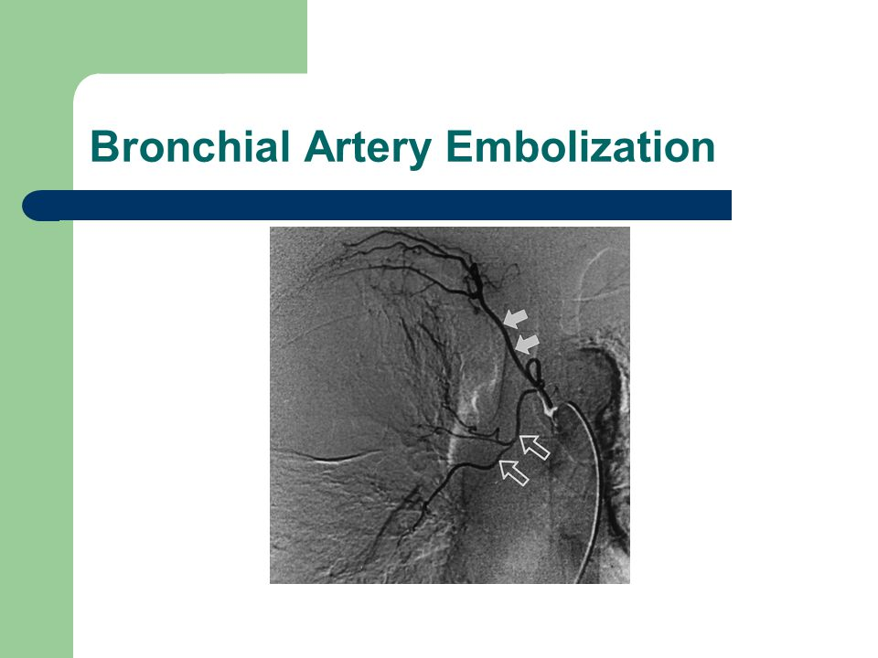 Embolization of bronchial arteries - Maple suyrup diet