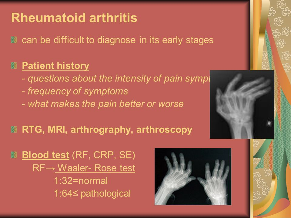 Rheumatoid arthritis can be difficult to diagnose in its early stages