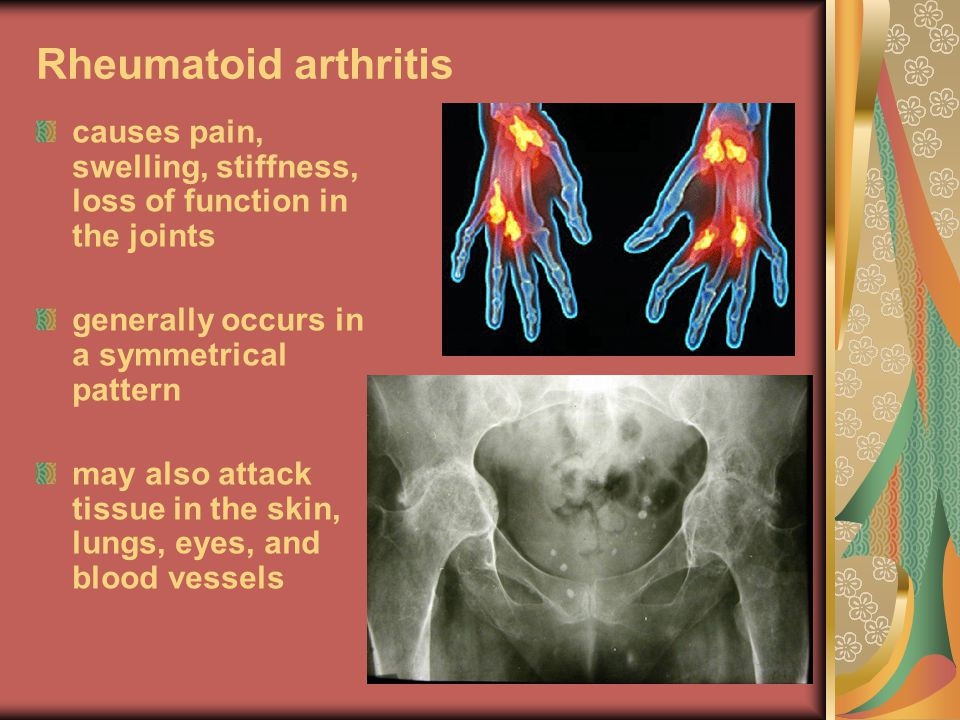 Rheumatoid arthritis causes pain, swelling, stiffness, loss of function in the joints. generally occurs in a symmetrical pattern.