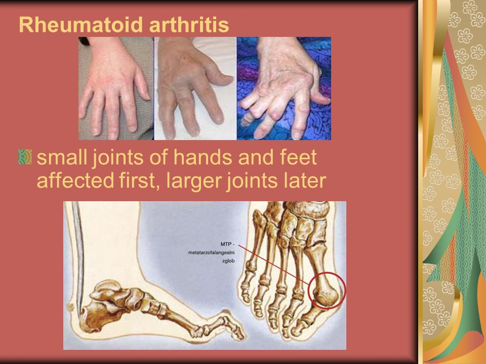 Rheumatoid arthritis small joints of hands and feet affected first, larger joints later