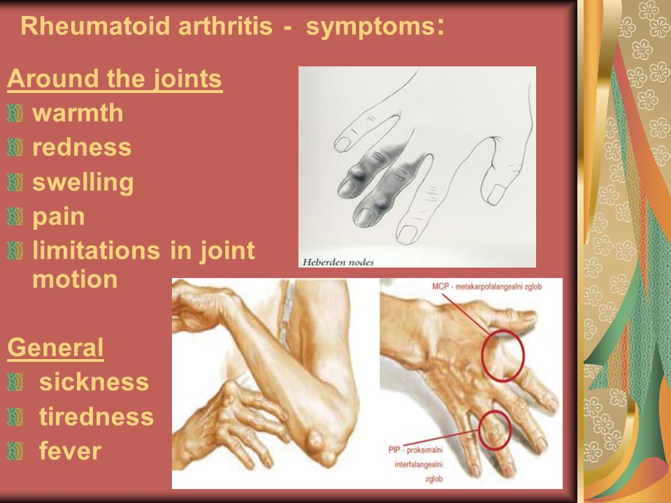 Rheumatoid arthritis - symptoms: