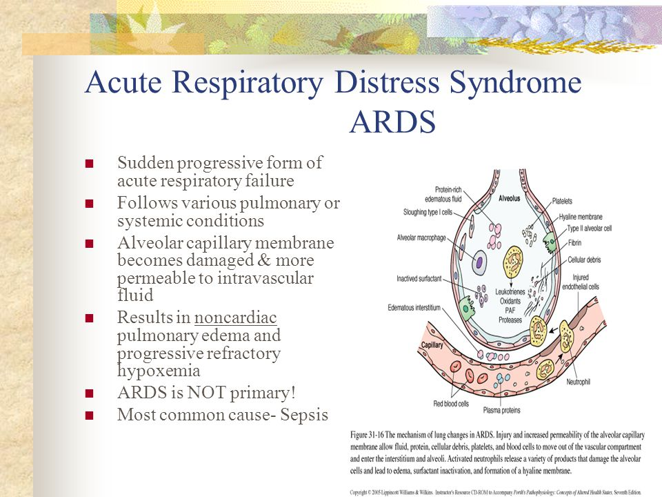 ARDS (Acute Respiratory Distress Syndrome) Symptoms, Causes, and Life Expectancy