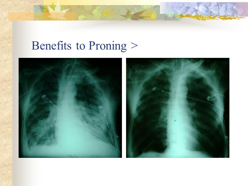 respiratory  respiratory failure and ards