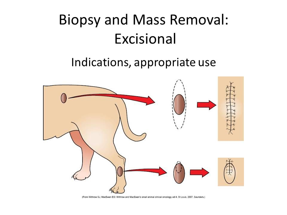 Biopsy and Mass Removal: Excisional