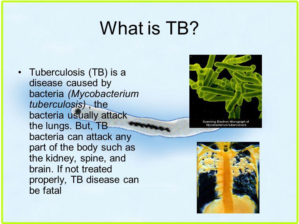 avery smithanatomy amrtutolo102414why is tuberculosis so Avery smithanatomy amrtutolo102414why is tuberculosis so avery smith anatomy a mrtutolo 10/24/14 why is tuberculosis so dangerous 1 what is tuberculosis and what.