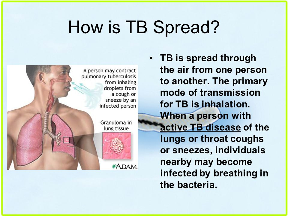 How is TB Spread