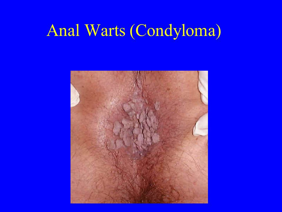 anal warts in navy