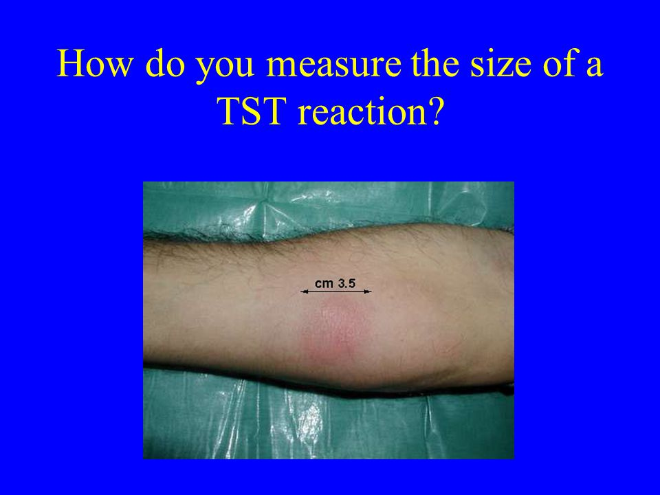 How do you measure the size of a TST reaction
