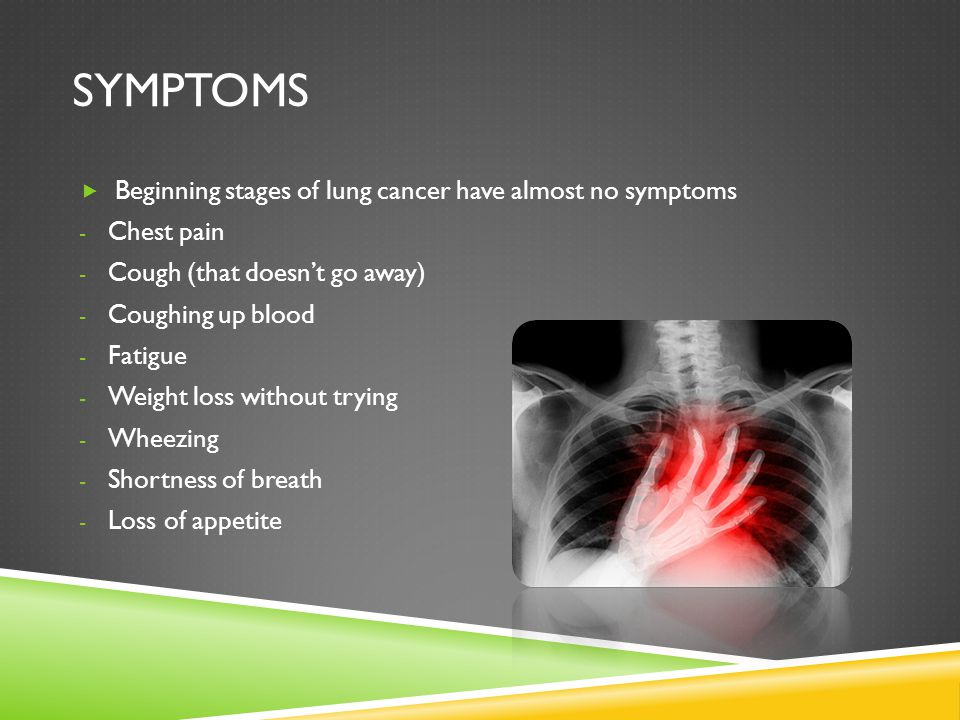Symptoms Beginning stages of lung cancer have almost no symptoms