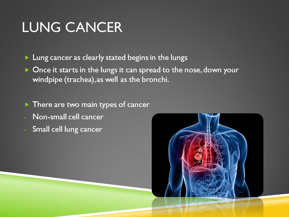 Lung cancer Lung cancer as clearly stated begins in the lungs