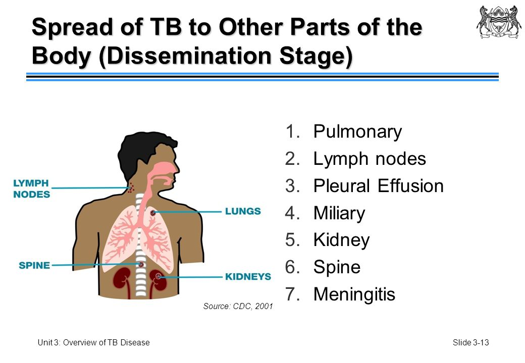 a study on the disease tuberculosis tb Case study 1 what is tuberculosis tuberculosis or tb is an infectious disease caused by a bacteria called mycobacterium tuberculosis the bacteria can enter the.