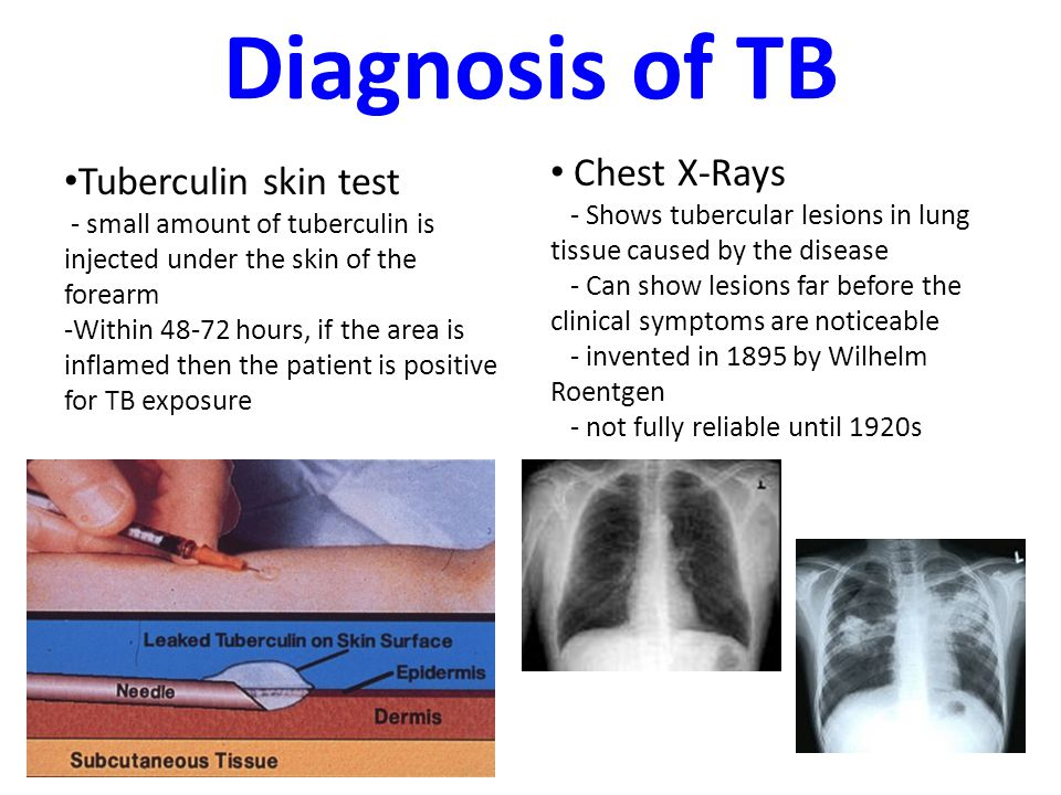 What does a positive tb test look like? What