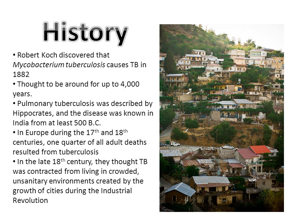 the spread of tuberculosis in ancient egypt and europe New research indicates that tuberculosis bacteria originated with early   countries of europe and north america, tuberculosis–or the dreaded  tb was  widespread in ancient egypt, for example: signs of the  it then migrated with  them, slowly spreading around the world as the population expanded.