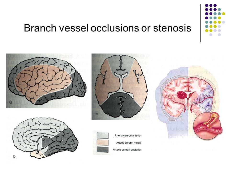 Tolle Arteria Cerebri Media Zweige Anatomie Fotos - Menschliche ...