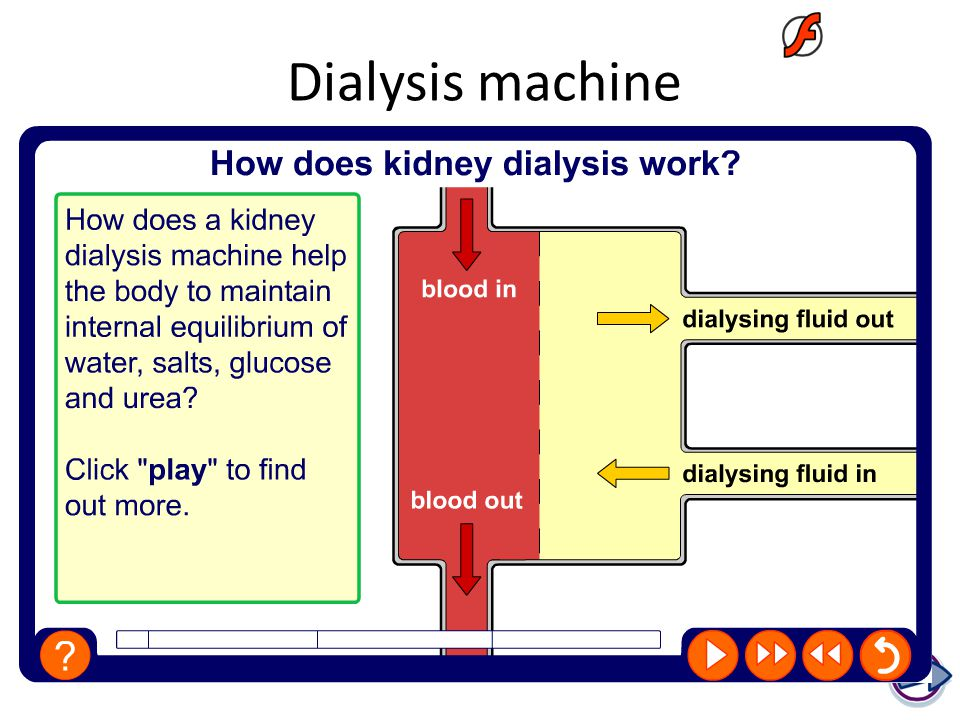 Dialysis requirements ppt video online download boardworks gcse separate sciences 2009 the kidneys ccuart Images