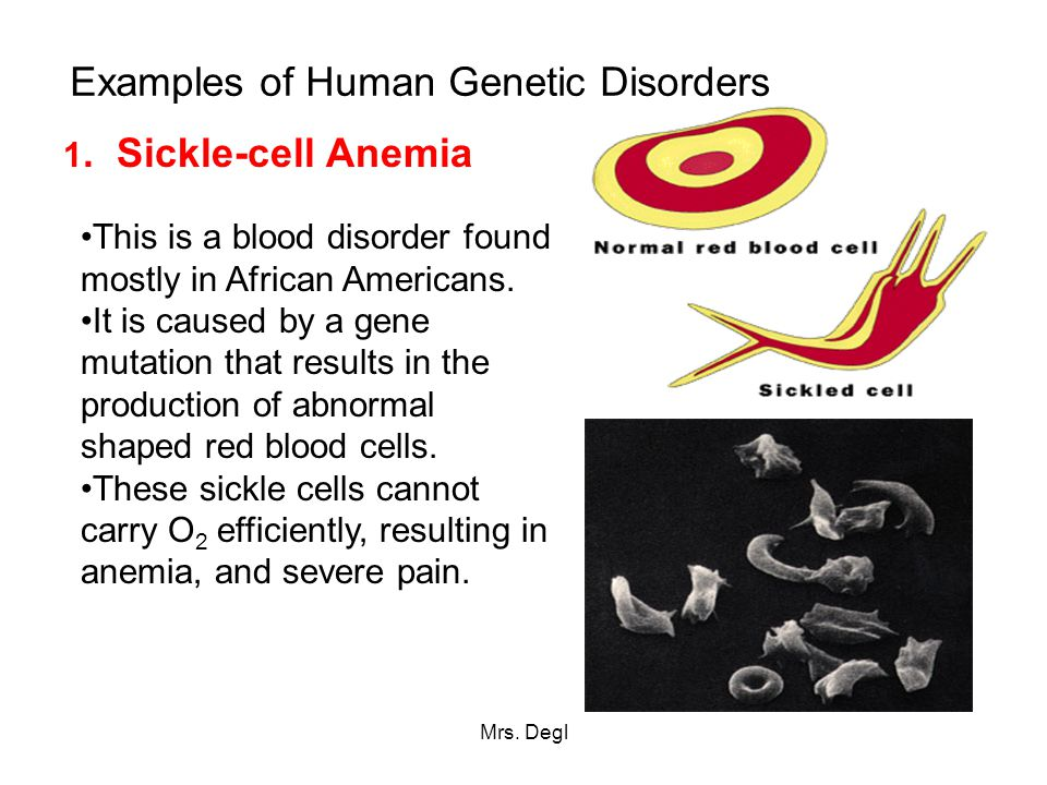Human Heredity and Genetic Disorders ppt download – Human Genetic Disorders Worksheet