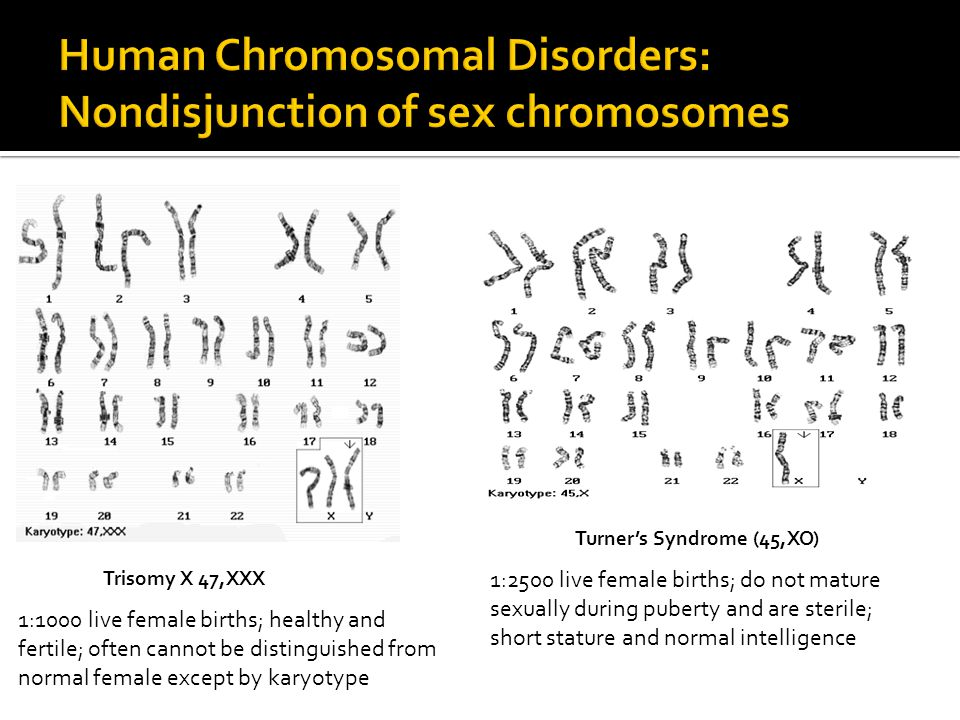 Of sex chromosomes in trisomy 13