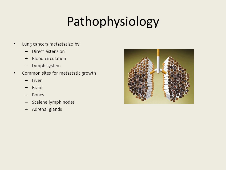 pathophysiology of lung cancer Over the past 100 years, our understanding of the pathogenesis of lung cancer has advanced impressively environmental carcinogens and a gene locus determining.