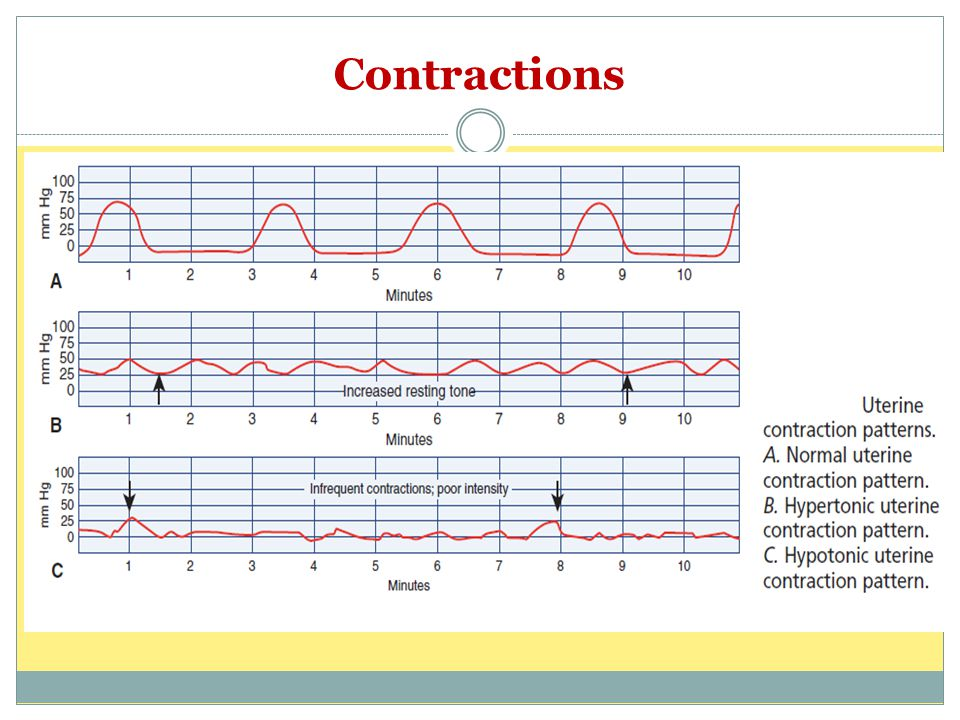 Abnormal Maternal Contraction  7CrUP2BN0jd6h5LGaDqCMho1iGDjiY4jlclIXr9TTCJc on sawtooth wave
