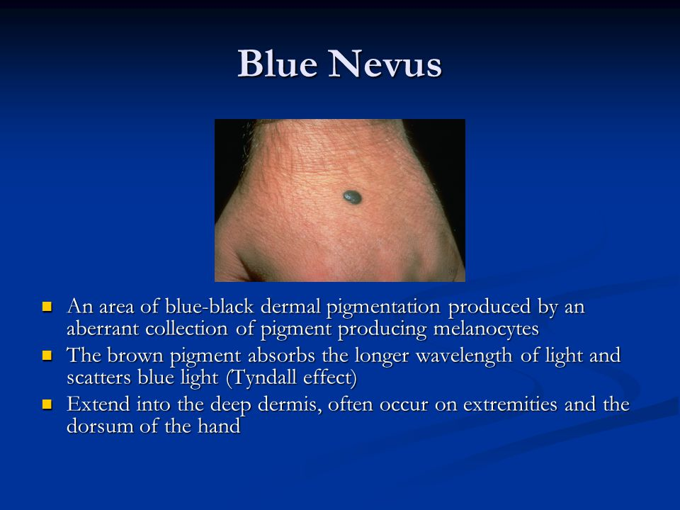 Blue Nevus An area of blue-black dermal pigmentation produced by an aberrant collection of pigment producing melanocytes.