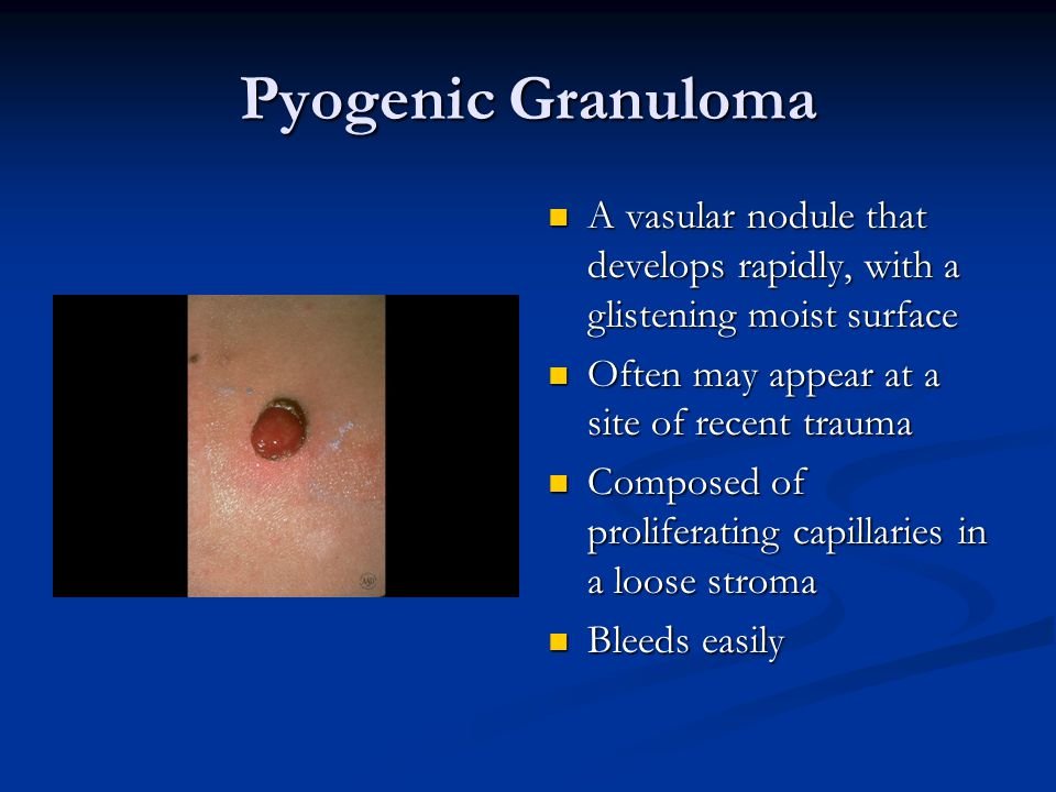 Pyogenic Granuloma A vasular nodule that develops rapidly, with a glistening moist surface. Often may appear at a site of recent trauma.