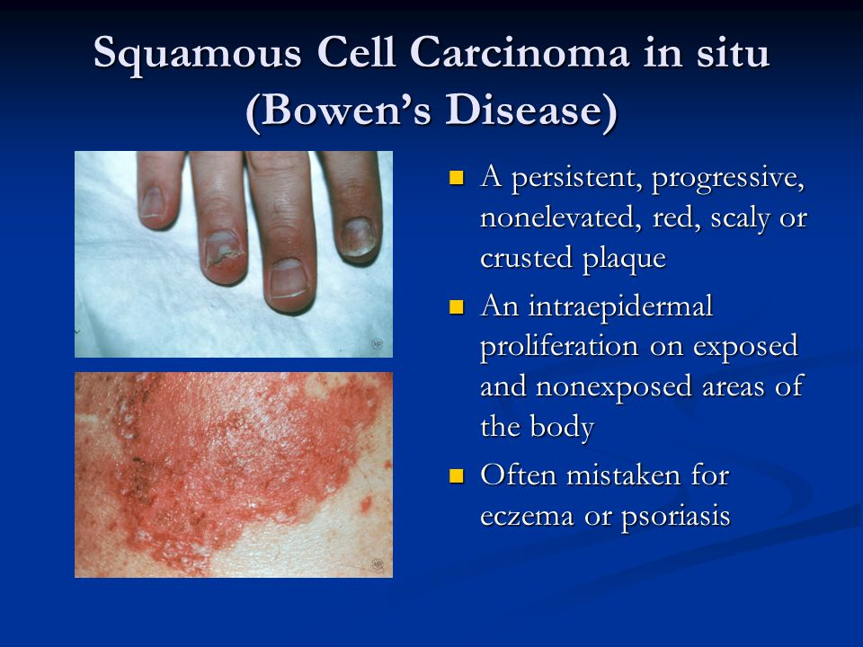 Squamous Cell Carcinoma in situ (Bowen's Disease)