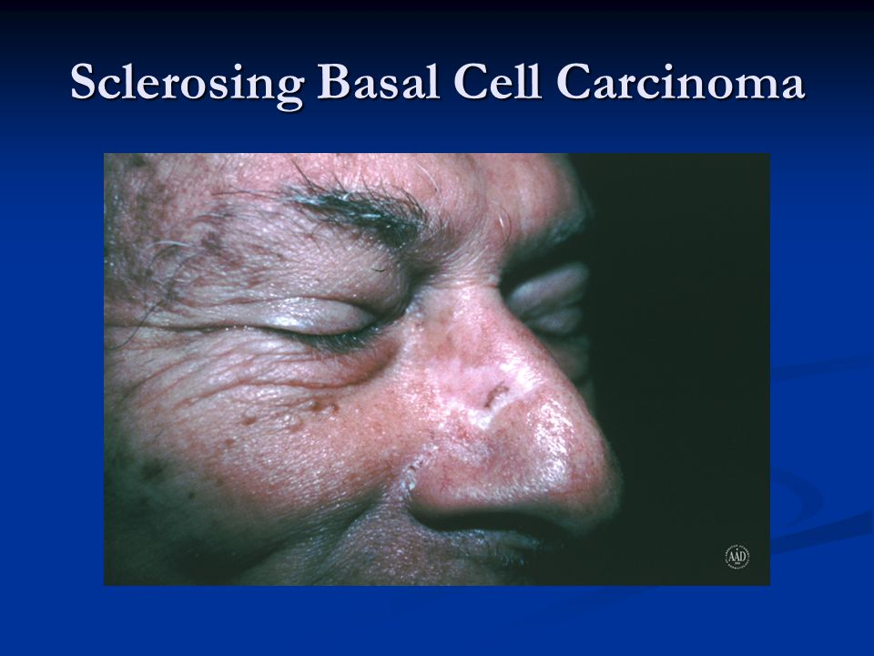 Sclerosing Basal Cell Carcinoma